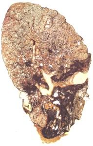 silikose-lungenquerschnit-2
