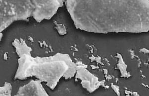 Quarzpartikeln veranwortlich für ein Silikose